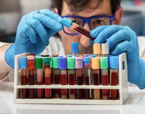 Stanovení koagulačních faktorů chromogenní a koagulační metodou