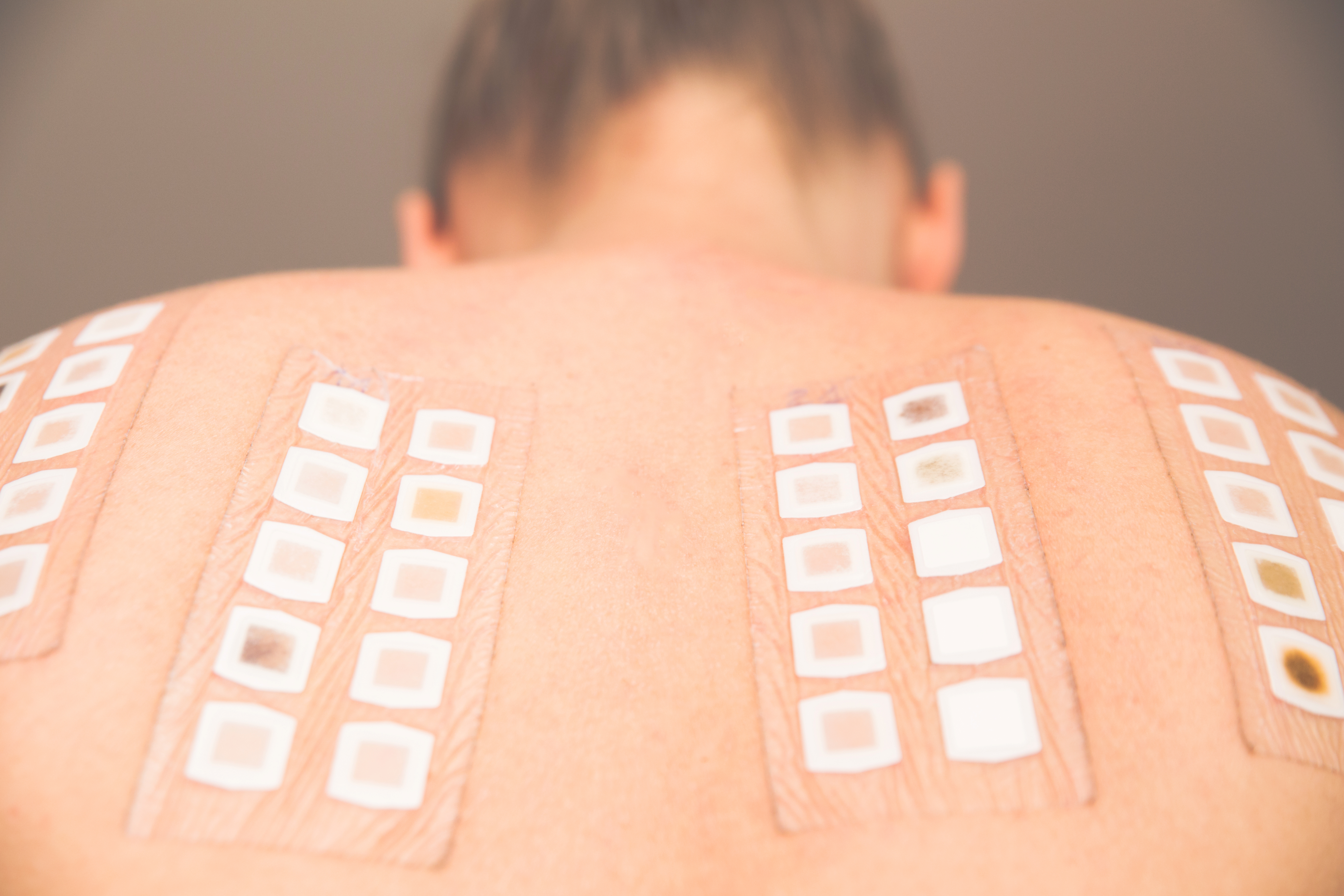 Diagnostika potravinové alergie